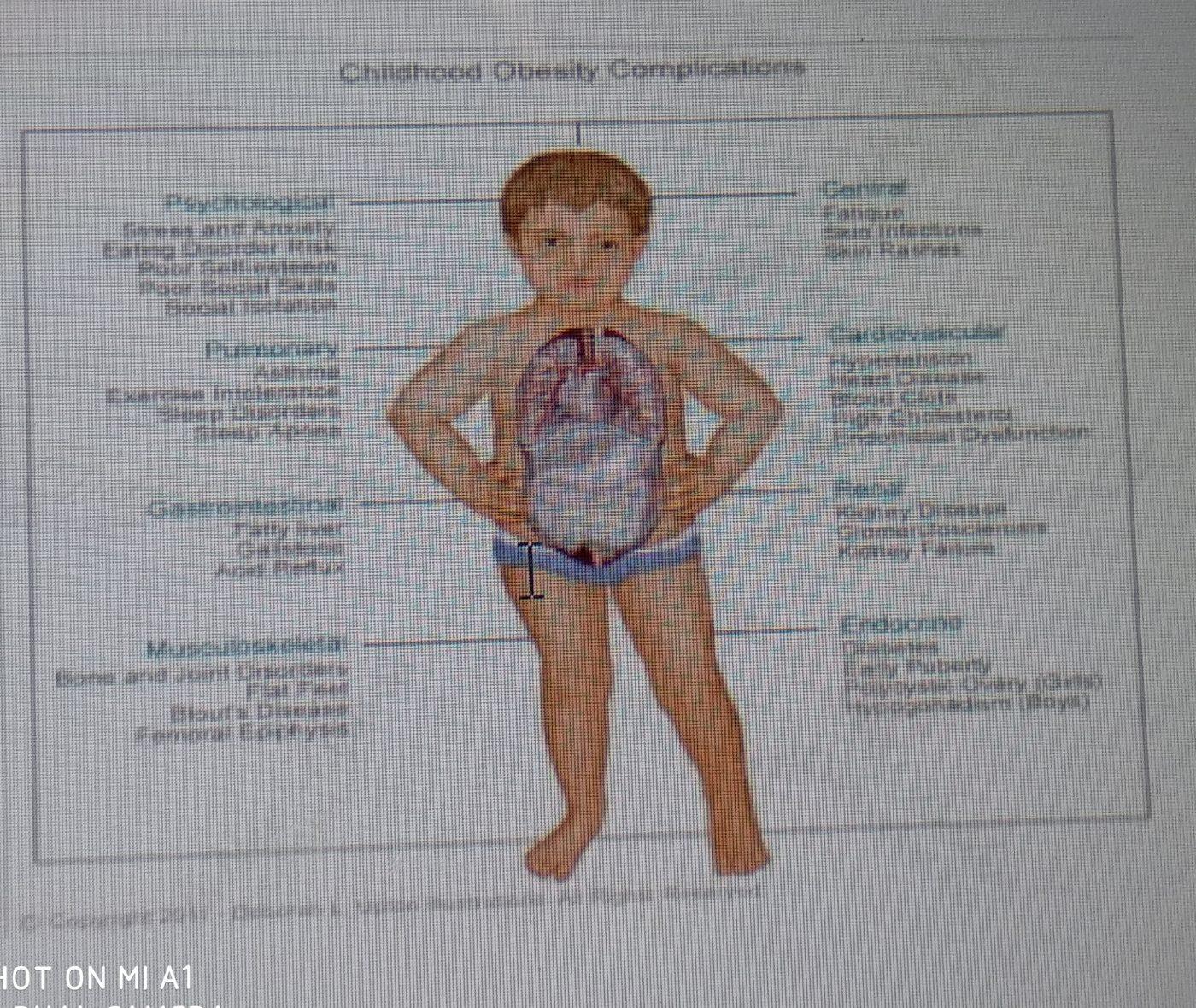Obesitas pada Anak, Materi Dr. Damayanti Rusdi