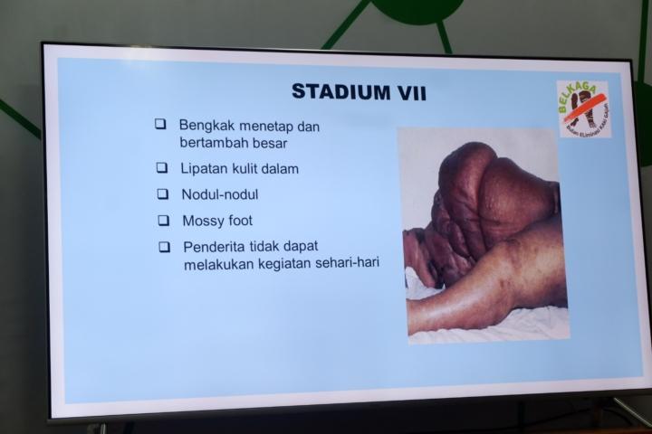 Contoh stadium 7