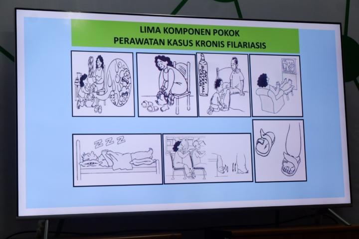 Cara merawat pasien dengan kaki gajah